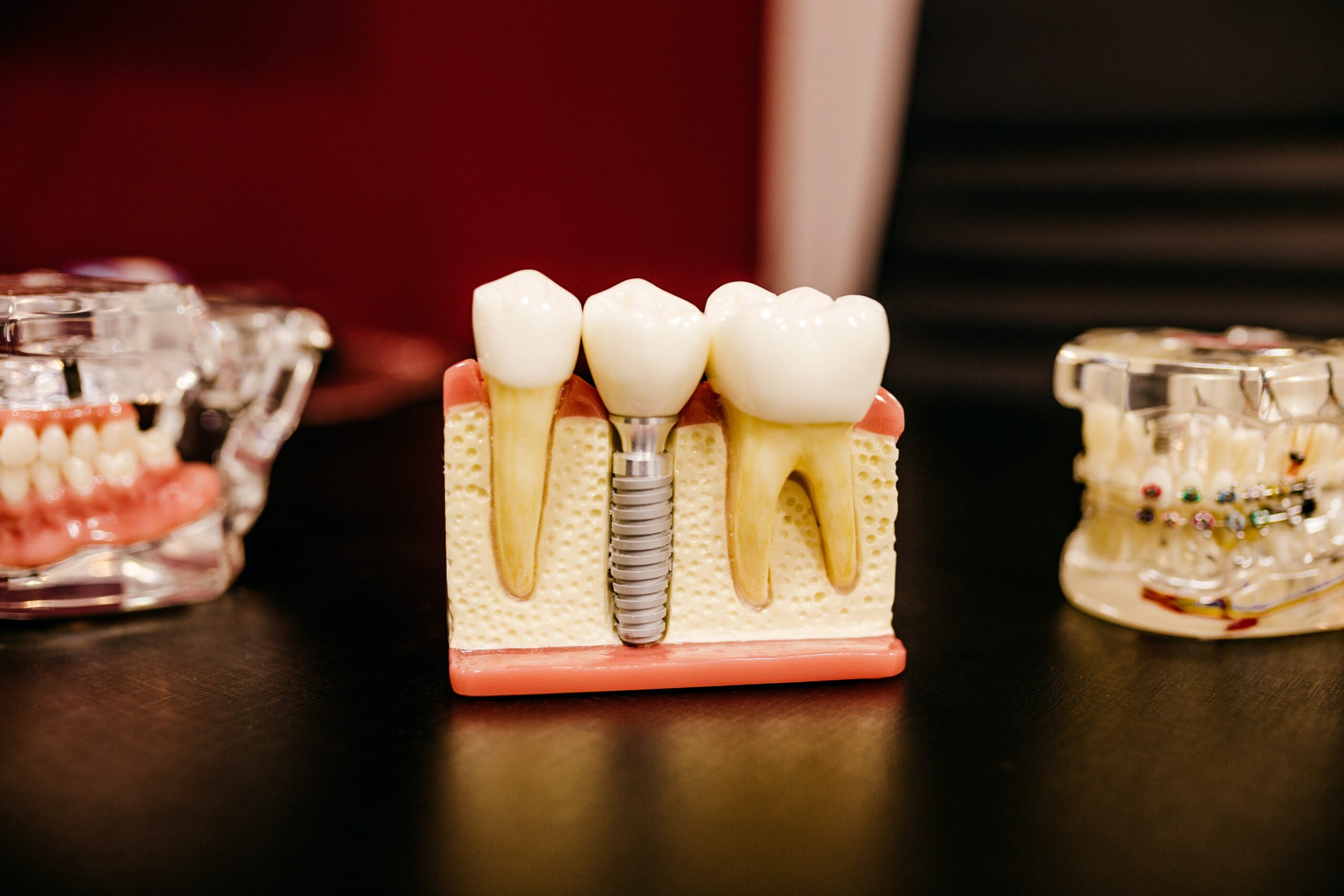 protesi dentarie e fresaggi fiano